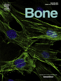 RAFT review paper on bone remodelling accepted for publication in scientific journal, 'Bone'